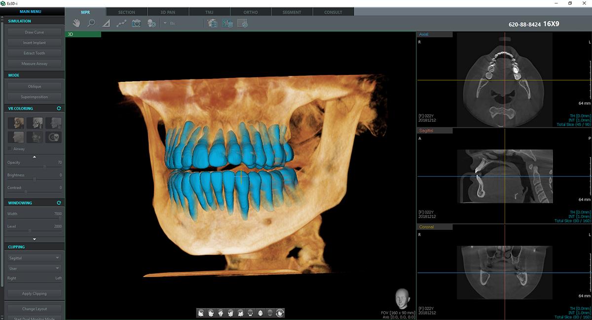 1. AI기술 특허 및 식약처 허가를 받은 이우소프트의 Quick Tooth Segmentation 영상.png